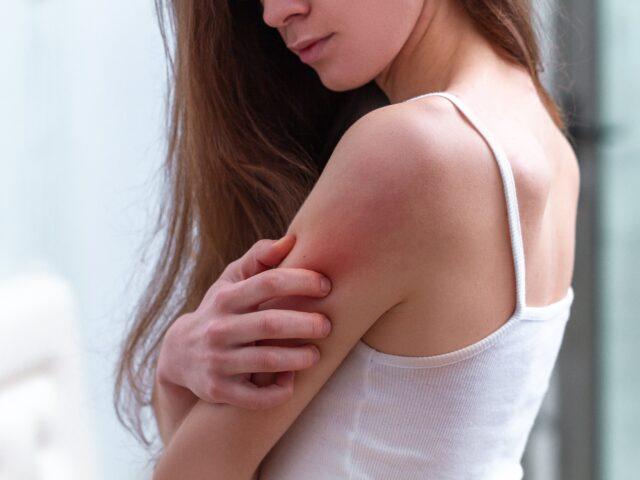 Kobieta z problemem skórnym na ramieniu - jak dbać o skórę z problemami
