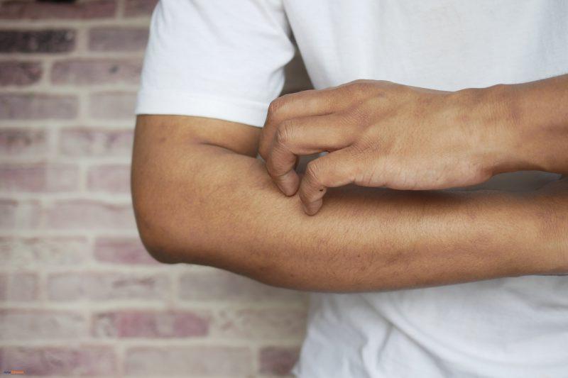mężczyzna drapiący się po ręku